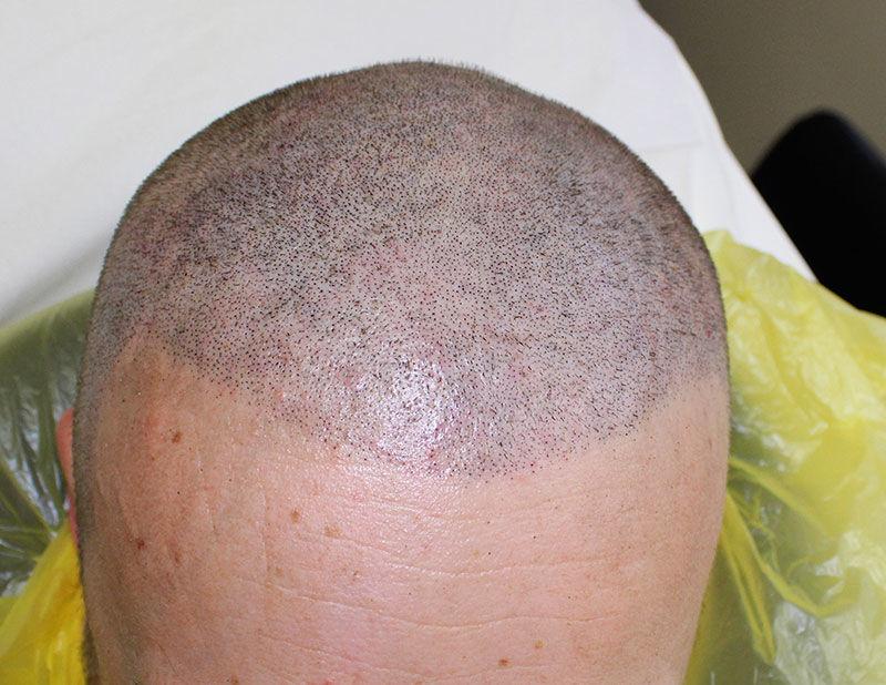 Hair Treatments Poole