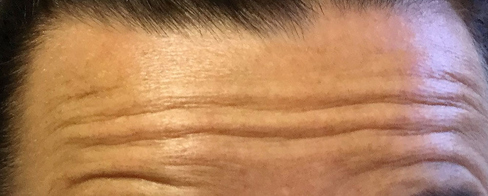 Muscle Relaxant-Wrinkles Reduction Injection Bournemouth before