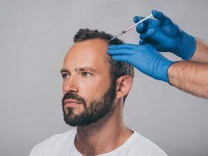 Hair Transplant Southampton