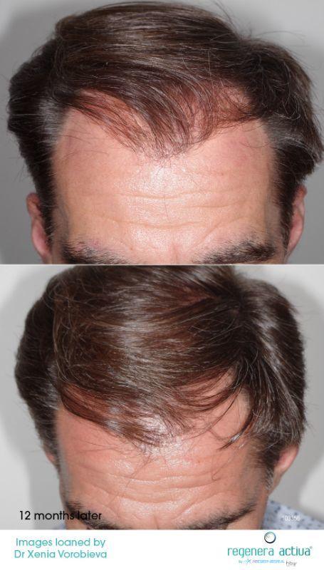 tajmeel-before-and-after-regenera